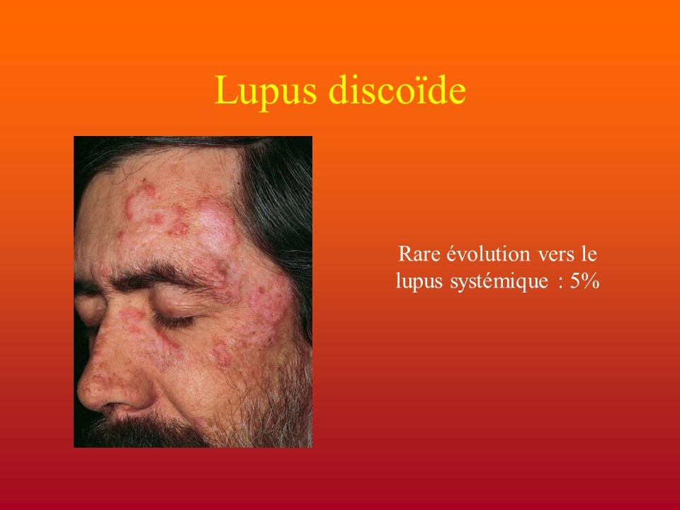 Rare évolution vers le lupus systémique : 5%