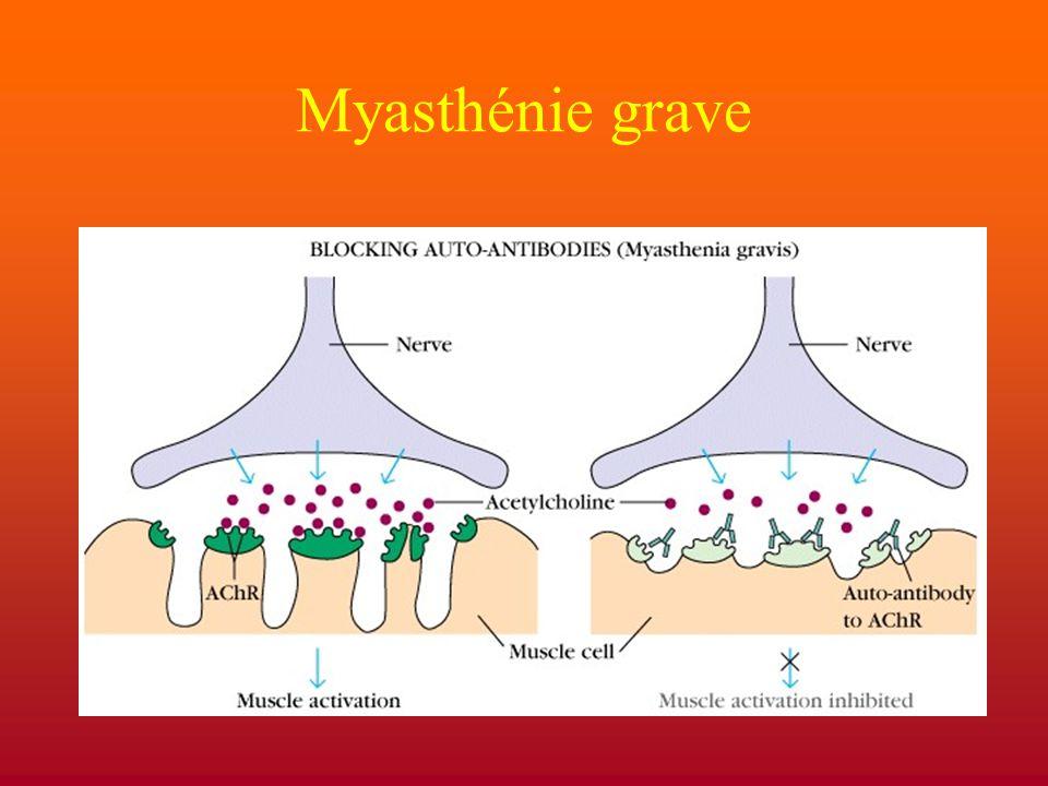 Myasthénie grave