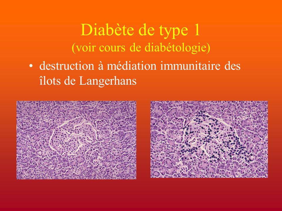 Diabète de type 1 (voir cours de diabétologie)