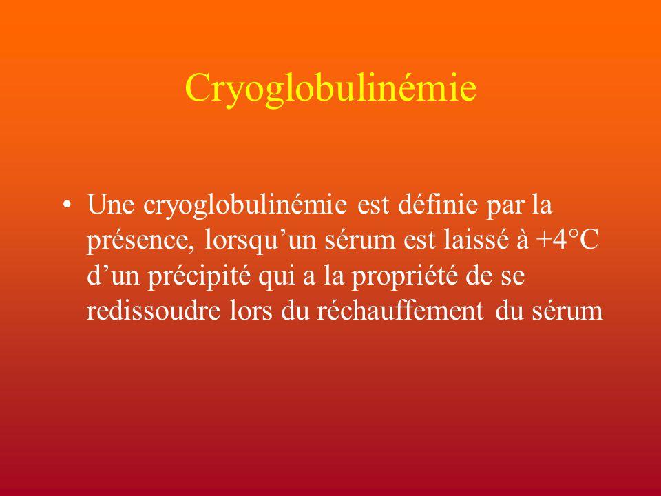 Cryoglobulinémie