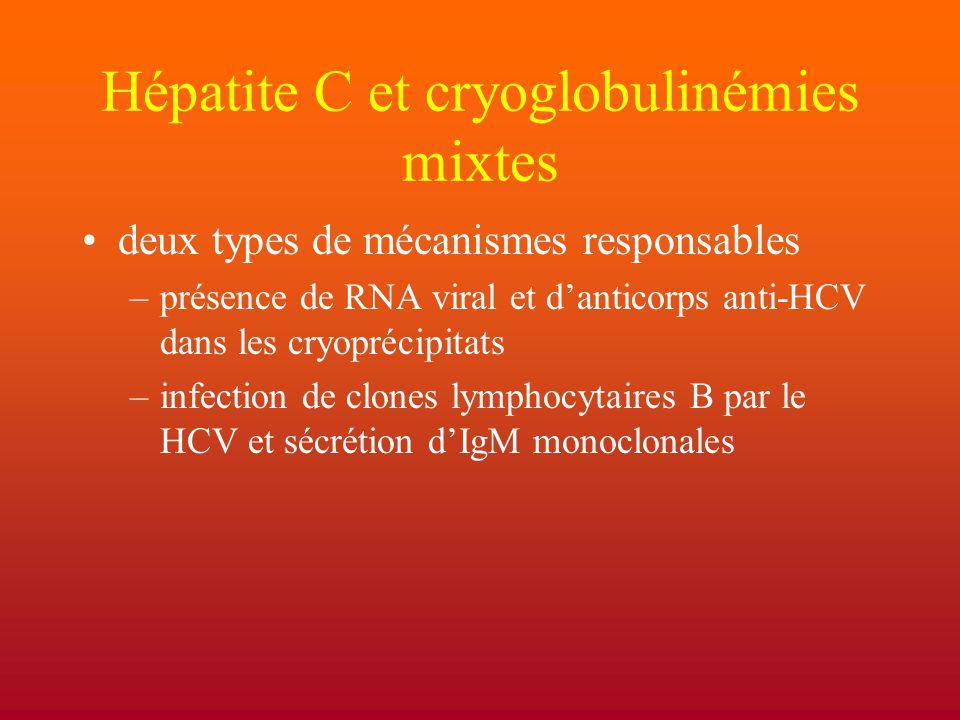 Hépatite C et cryoglobulinémies mixtes