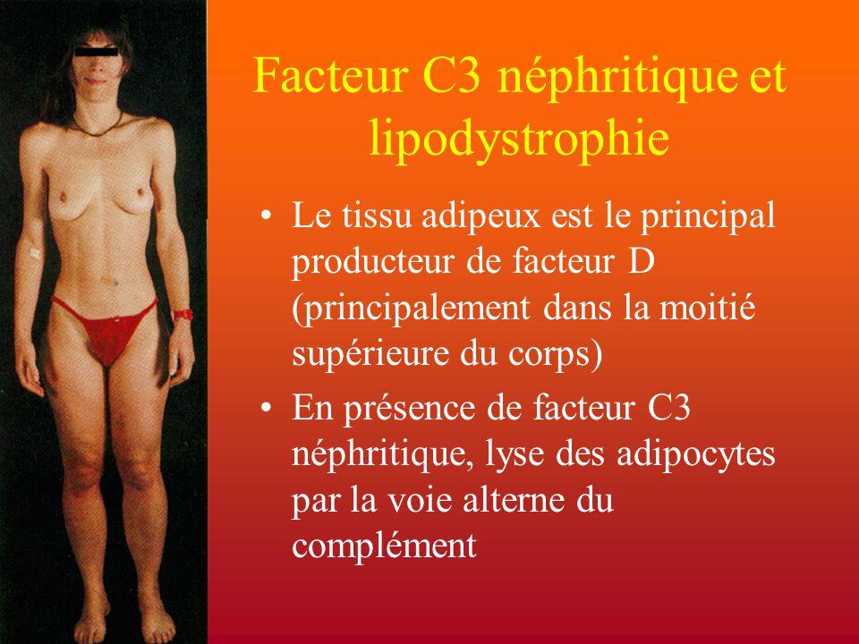 Facteur C3 néphritique et lipodystrophie