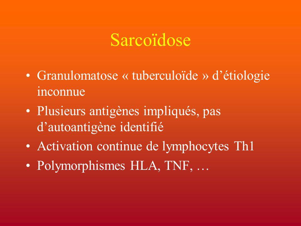 Sarcoïdose Granulomatose « tuberculoïde » d'étiologie inconnue