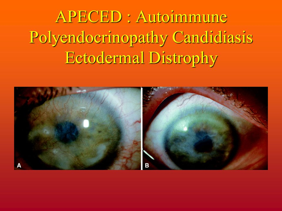APECED : Autoimmune Polyendocrinopathy Candidiasis Ectodermal Distrophy