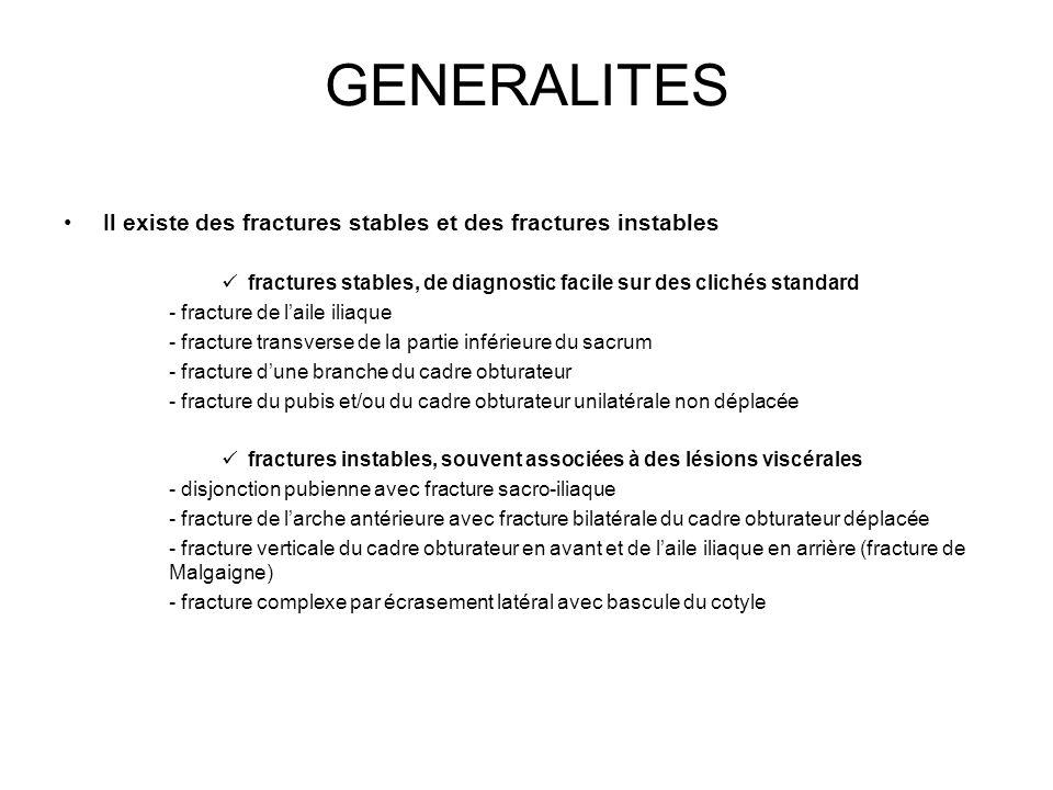 GENERALITES Il existe des fractures stables et des fractures instables