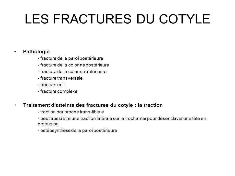 LES FRACTURES DU COTYLE