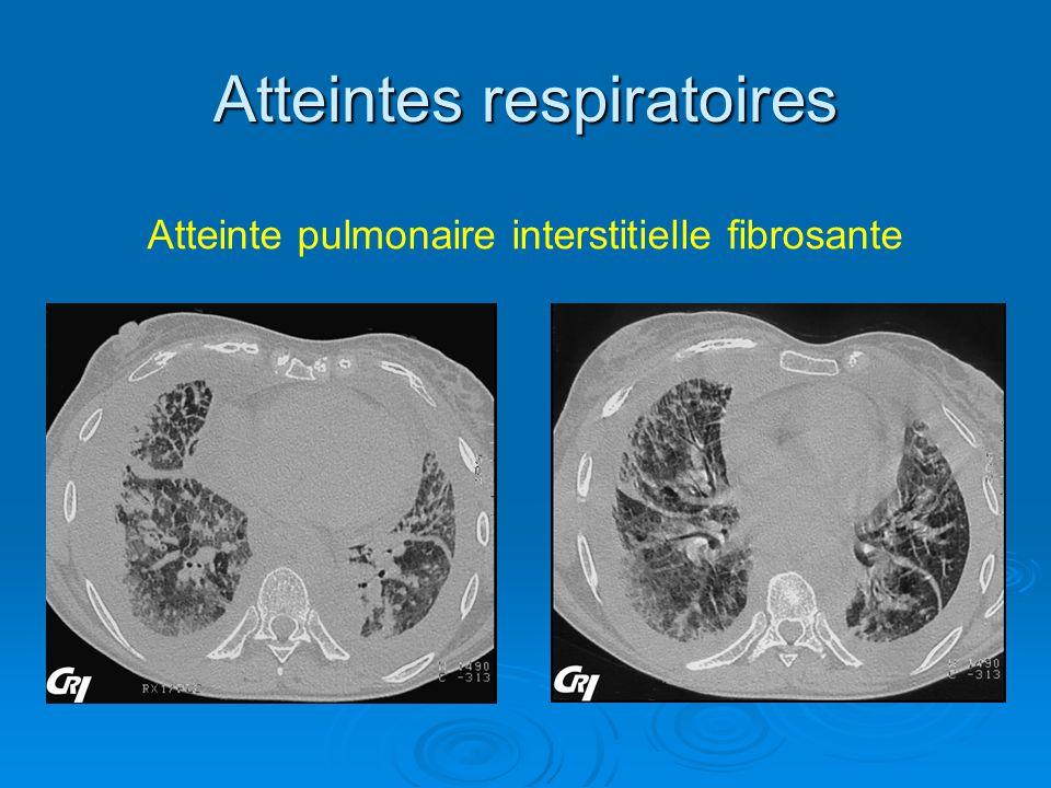 Atteintes respiratoires