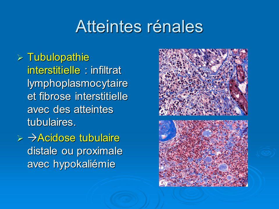 Atteintes rénales Tubulopathie interstitielle : infiltrat lymphoplasmocytaire et fibrose interstitielle avec des atteintes tubulaires.