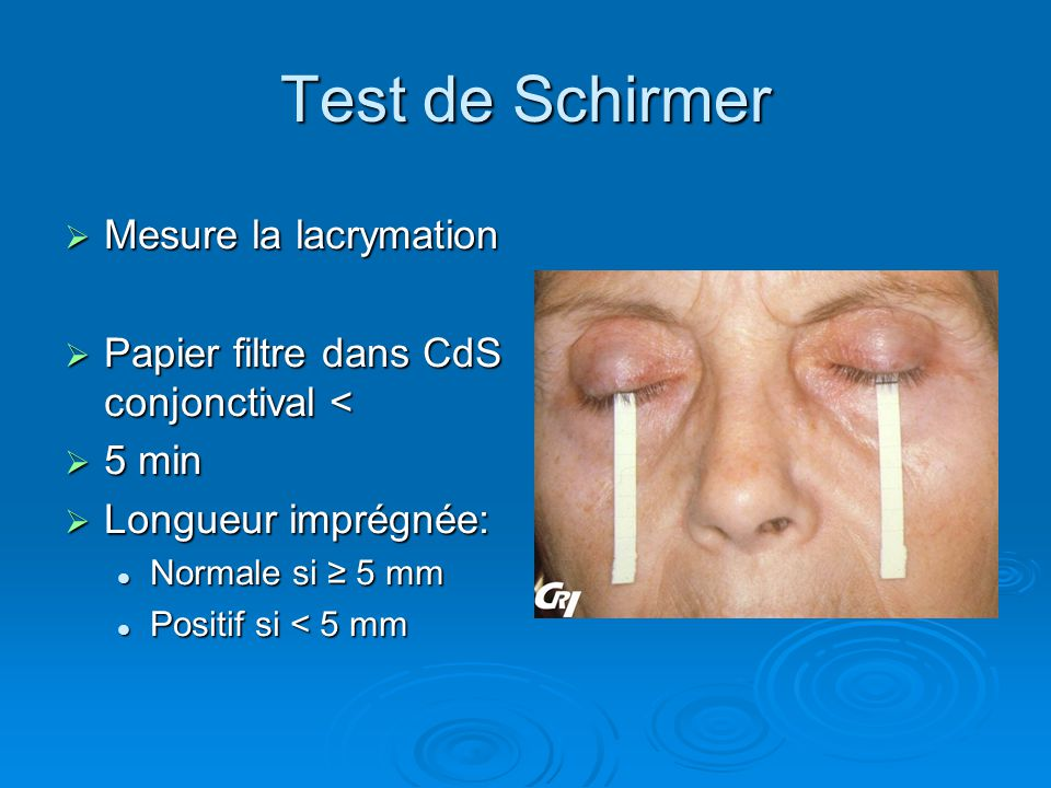 Test de Schirmer Mesure la lacrymation