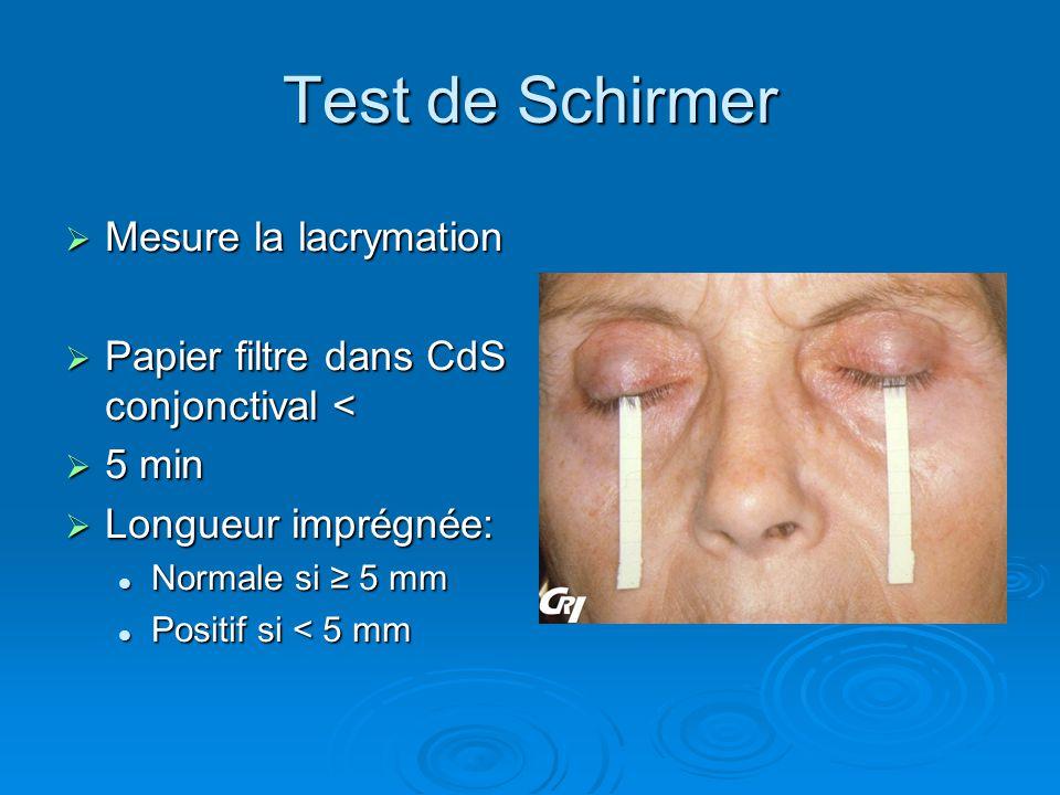 Test de Schirmer Mesure la lacrymation