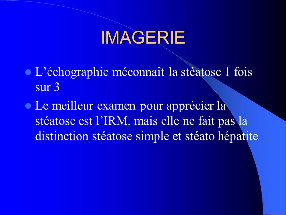 IMAGERIE L'échographie méconnaît la stéatose 1 fois sur 3