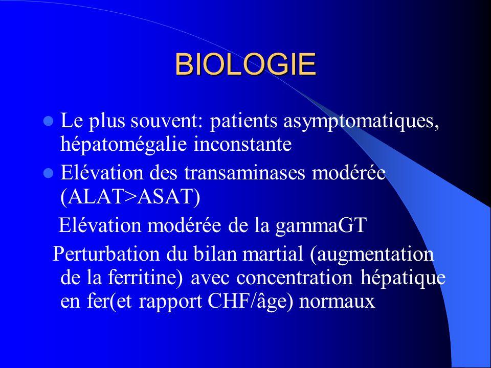 BIOLOGIE Le plus souvent: patients asymptomatiques, hépatomégalie inconstante. Elévation des transaminases modérée (ALAT>ASAT)