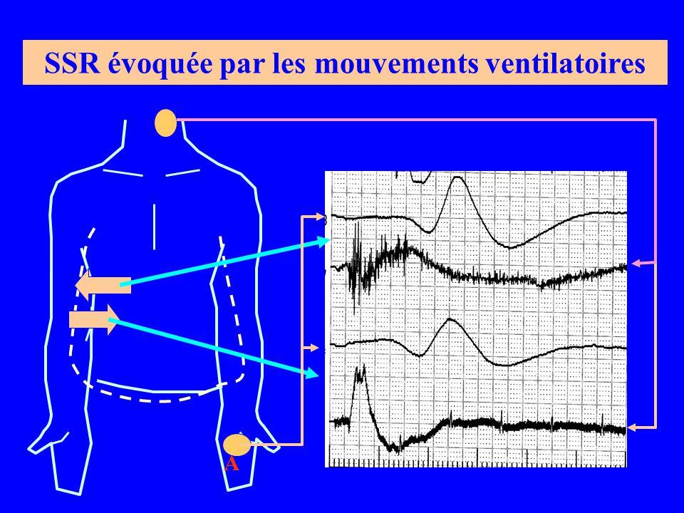 SSR évoquée par les mouvements ventilatoires