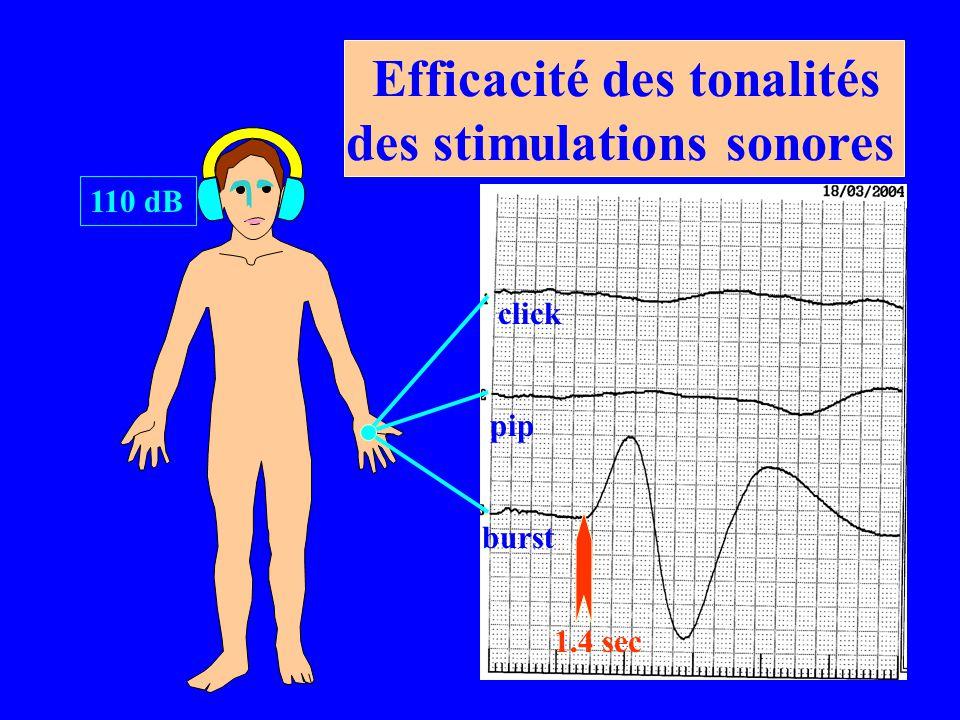 Efficacité des tonalités des stimulations sonores