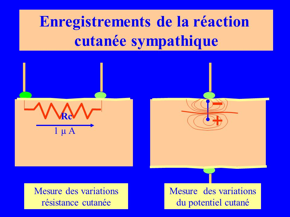 Enregistrements de la réaction