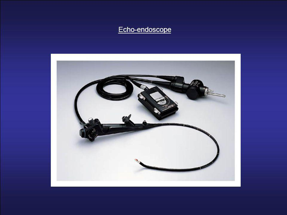 Echo-endoscope