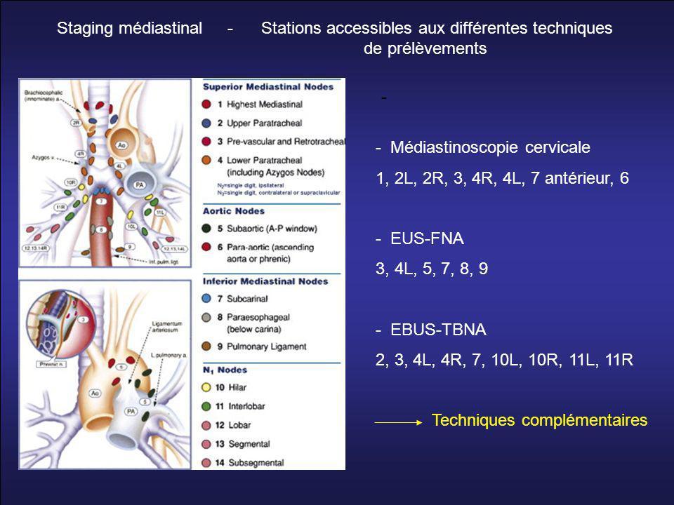 Staging médiastinal - Stations accessibles aux différentes techniques