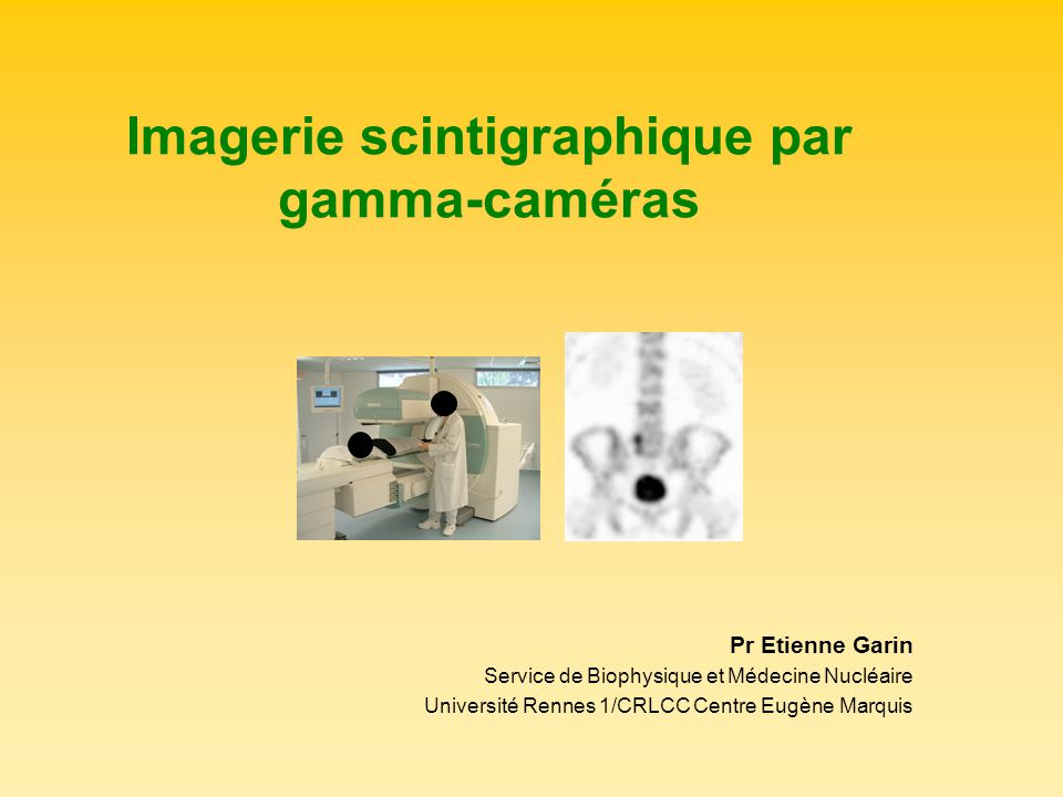 Imagerie scintigraphique par gamma-caméras