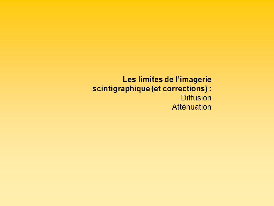 Les limites de l'imagerie scintigraphique (et corrections) :