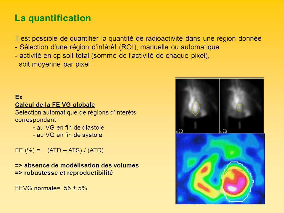 La quantification Il est possible de quantifier la quantité de radioactivité dans une région donnée.