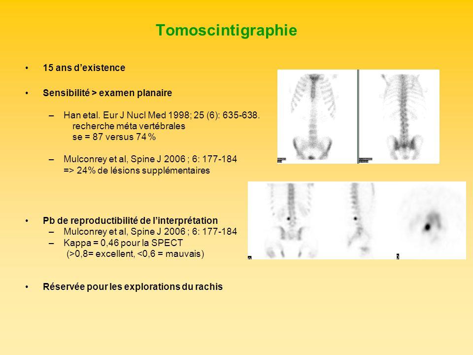 Tomoscintigraphie 15 ans d'existence Sensibilité > examen planaire