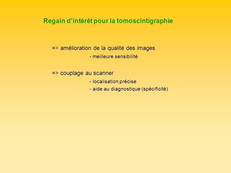 Regain d'intérêt pour la tomoscintigraphie