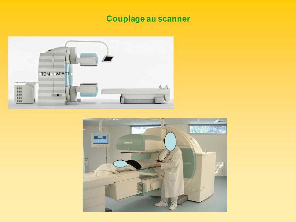 Couplage au scanner TDM SPECT