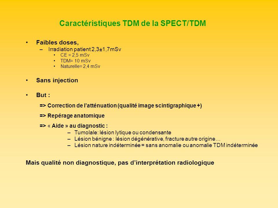 Caractéristiques TDM de la SPECT/TDM