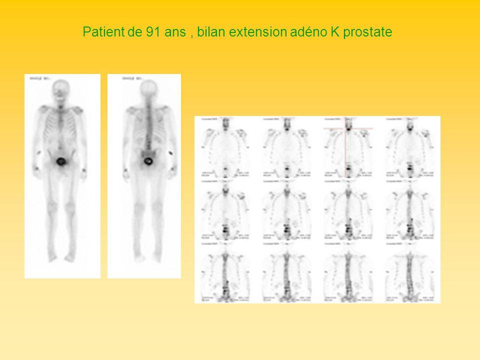 Patient de 91 ans , bilan extension adéno K prostate