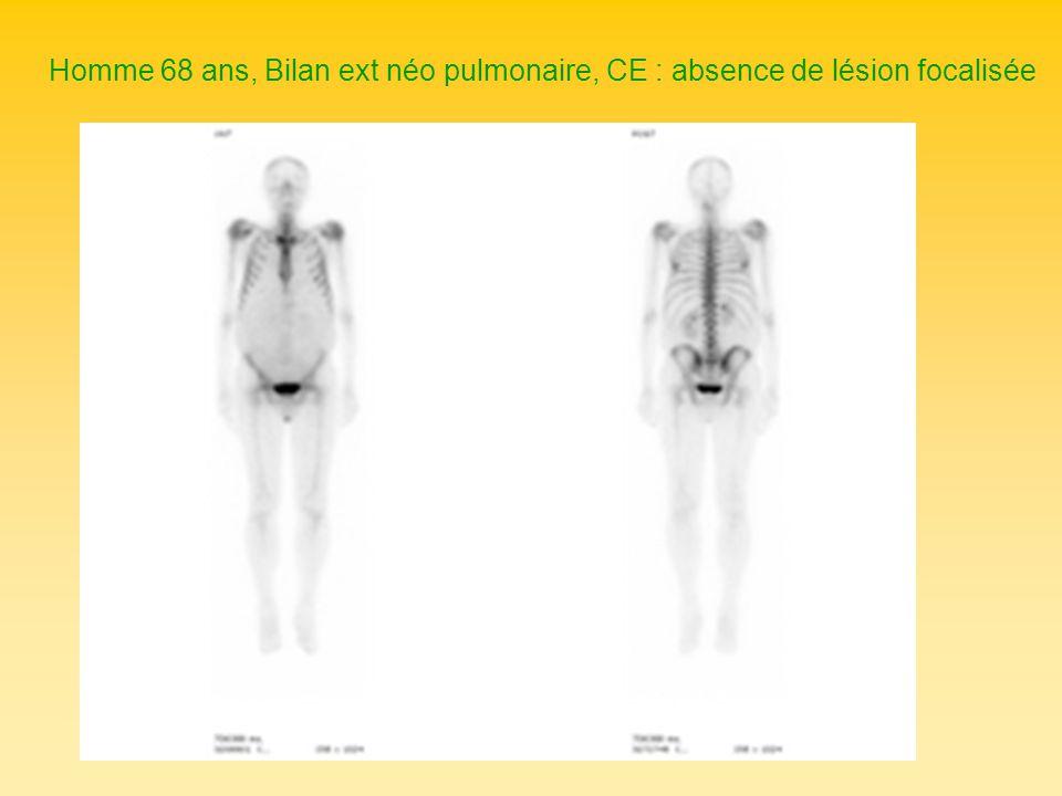 Homme 68 ans, Bilan ext néo pulmonaire, CE : absence de lésion focalisée