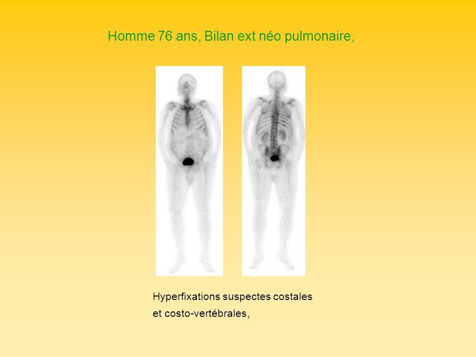 Homme 76 ans, Bilan ext néo pulmonaire,