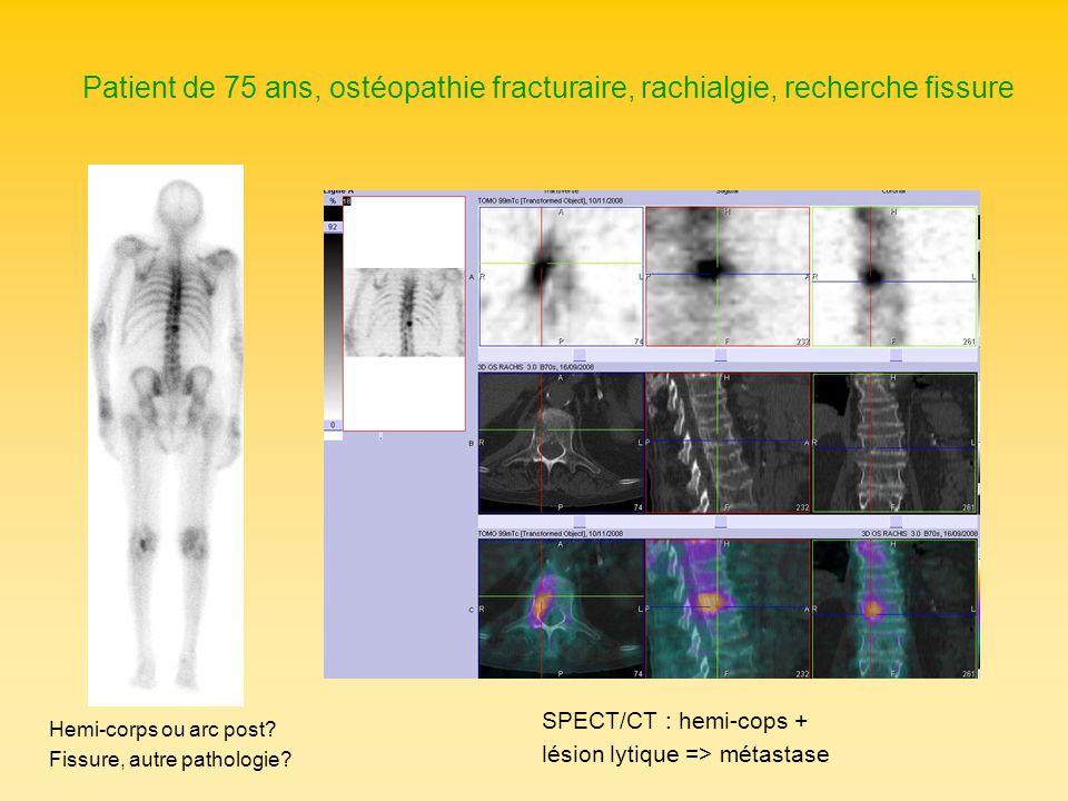 Patient de 75 ans, ostéopathie fracturaire, rachialgie, recherche fissure