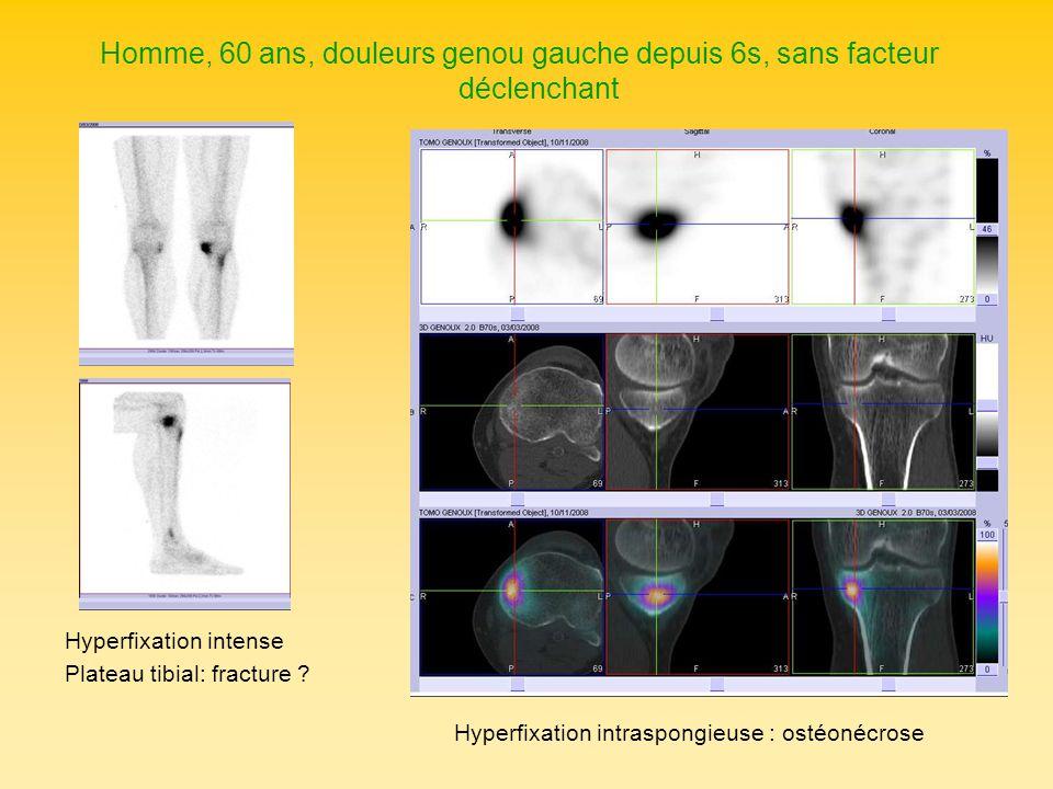 Homme, 60 ans, douleurs genou gauche depuis 6s, sans facteur déclenchant