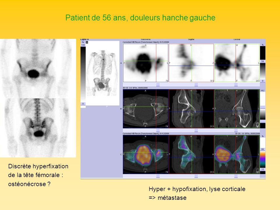 Patient de 56 ans, douleurs hanche gauche