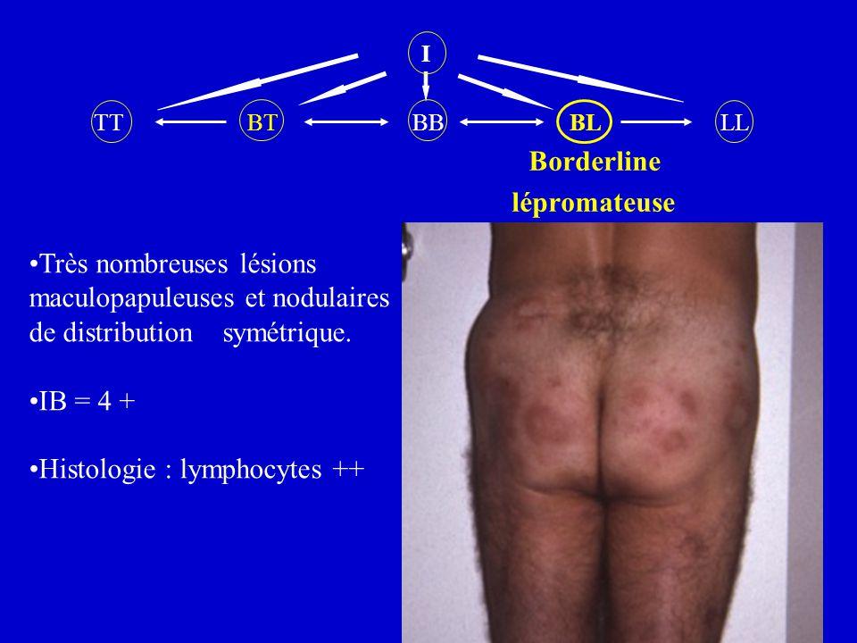 Très nombreuses lésions maculopapuleuses et nodulaires