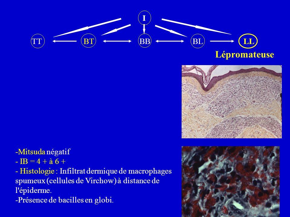 I TT BT BB BL LL. Lépromateuse.