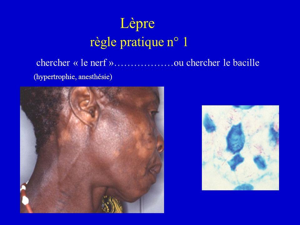 Lèpre règle pratique n° 1 chercher « le nerf »………………ou chercher le bacille (hypertrophie, anesthésie)