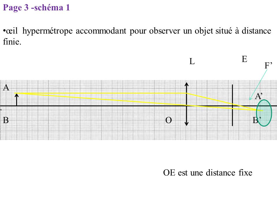 Page 3 -schéma 1 œil hypermétrope accommodant pour observer un objet situé à distance finie. E. L.