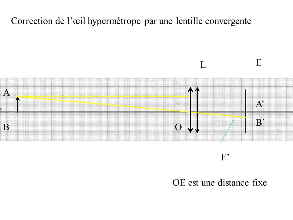 Correction de l'œil hypermétrope par une lentille convergente