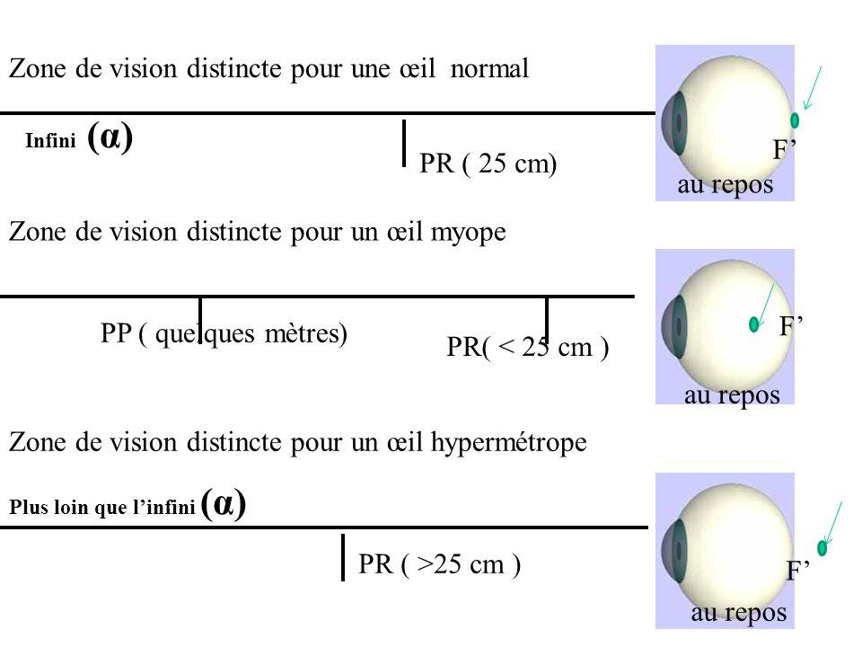 Zone de vision distincte pour une œil normal
