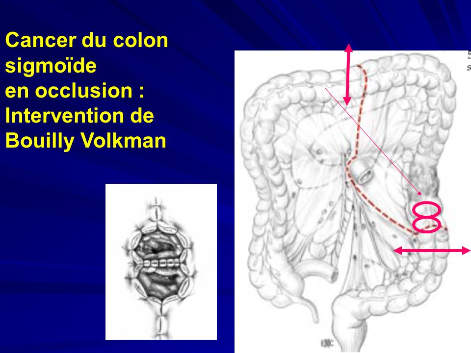 Cancer du colon sigmoïde