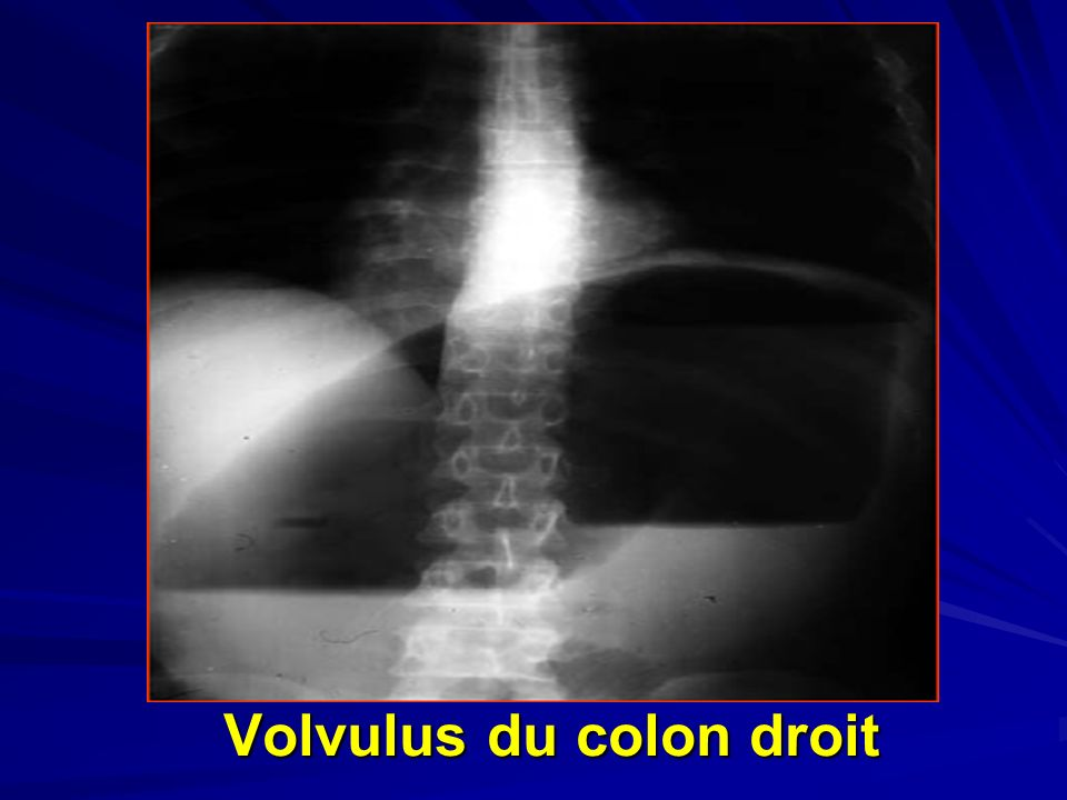 Volvulus du colon droit
