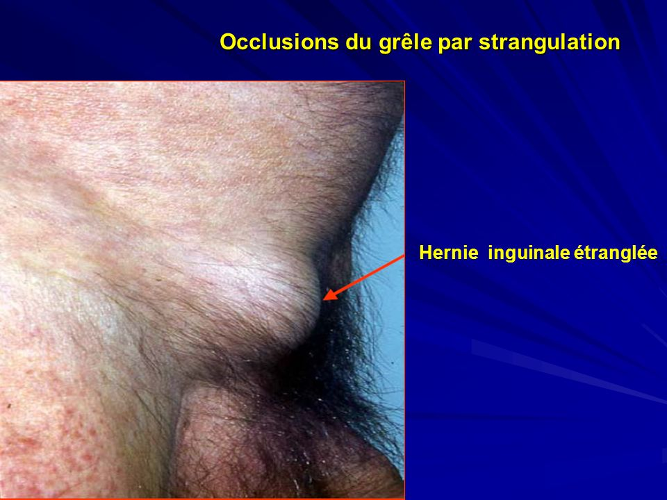 Occlusions du grêle par strangulation