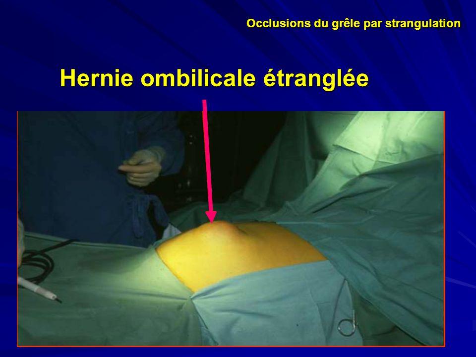 Hernie ombilicale étranglée