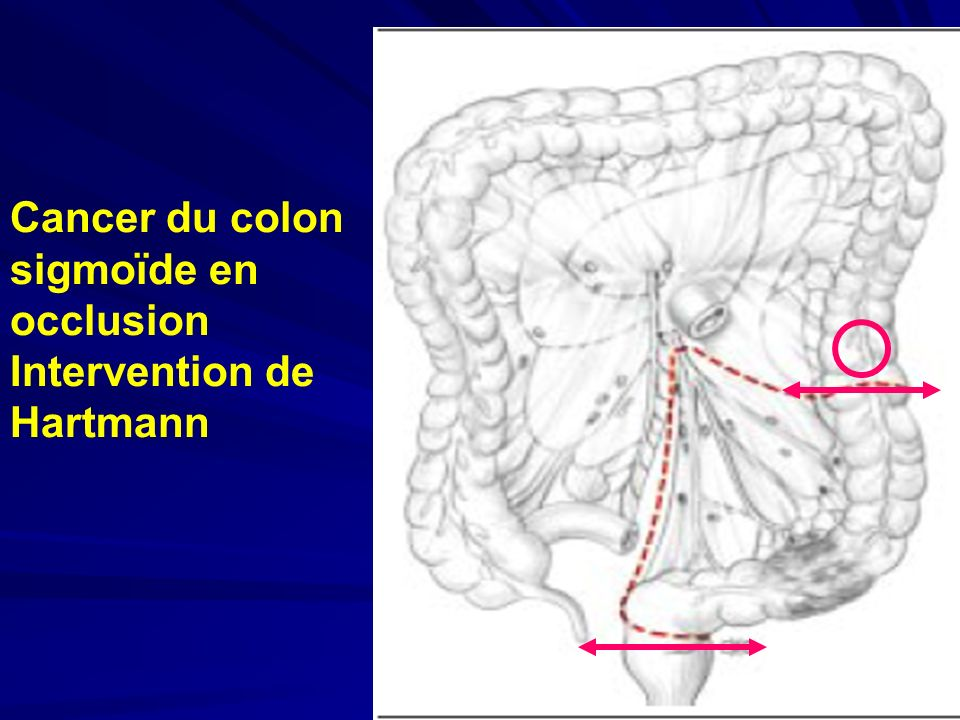 Cancer du colon sigmoïde en occlusion Intervention de Hartmann