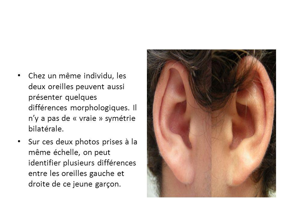 Chez un même individu, les deux oreilles peuvent aussi présenter quelques différences morphologiques. Il n'y a pas de « vraie » symétrie bilatérale.