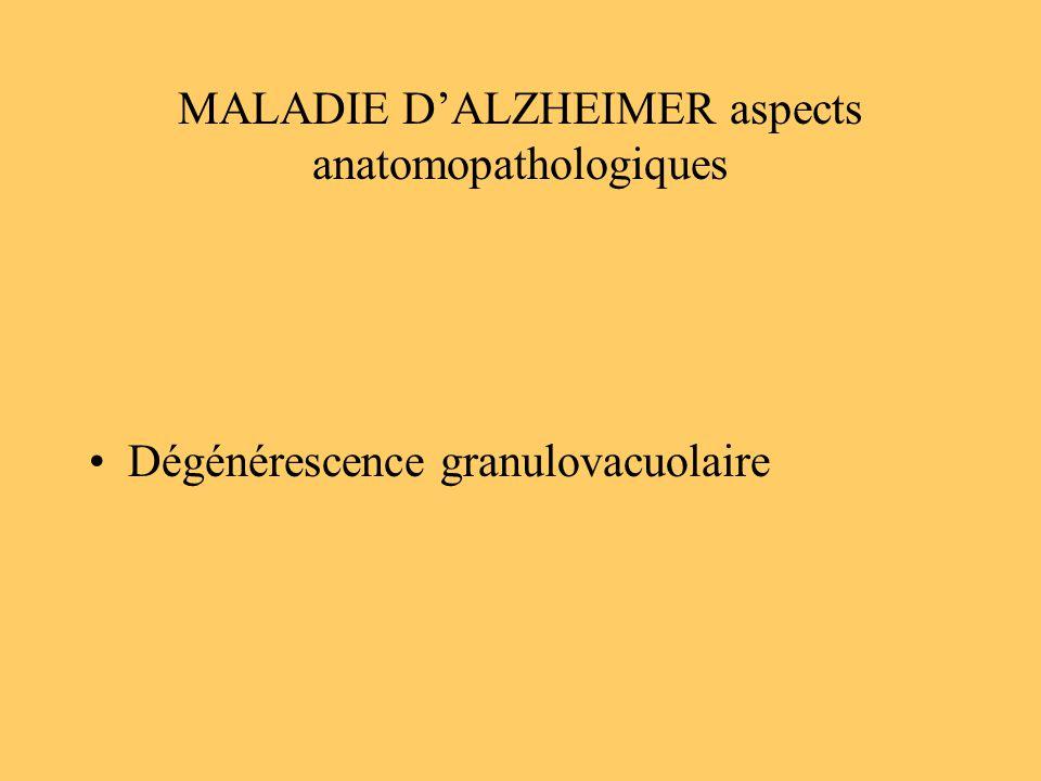 MALADIE D'ALZHEIMER aspects anatomopathologiques