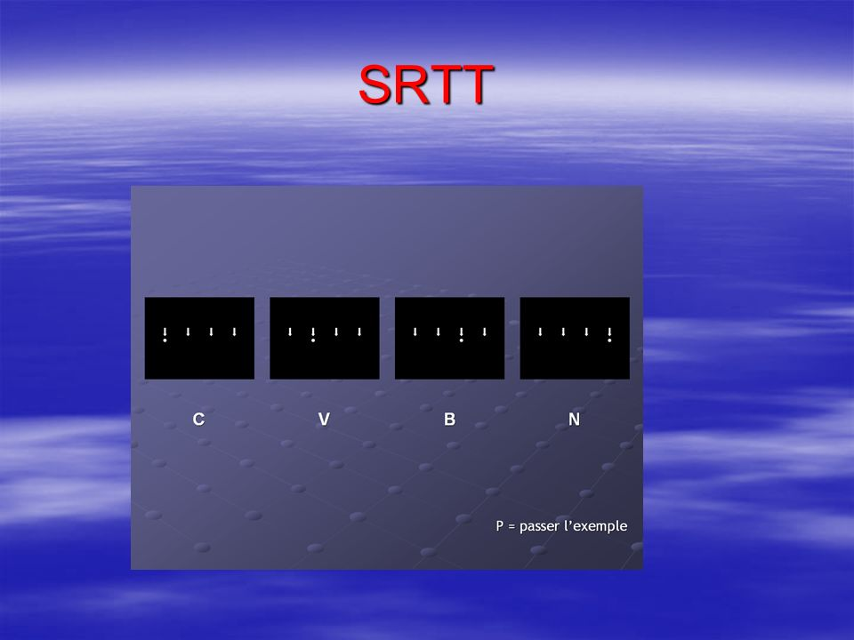 SRTT Serial Reaction Time Task