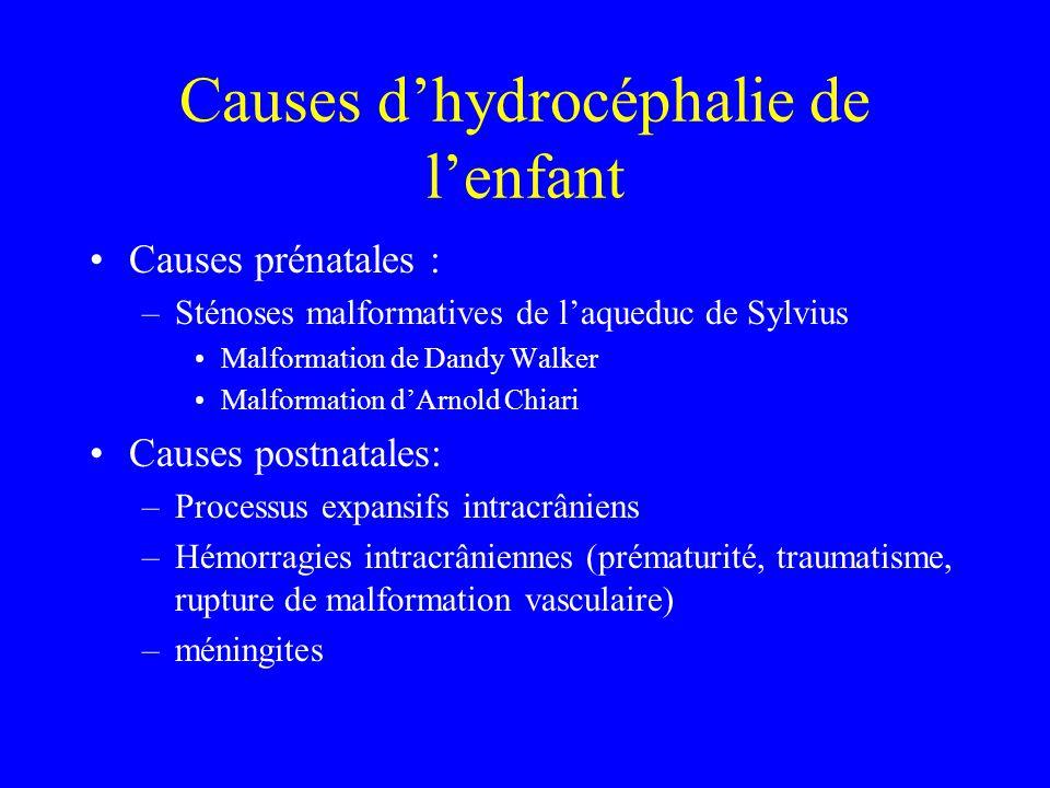 Causes d'hydrocéphalie de l'enfant