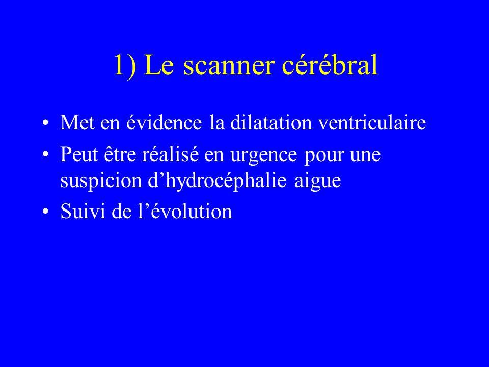 1) Le scanner cérébral Met en évidence la dilatation ventriculaire